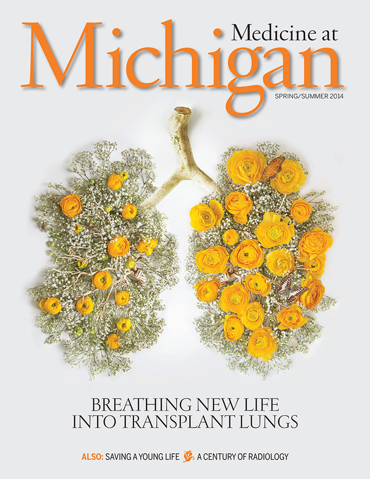 Breathing New Life Into Transplant Lungs